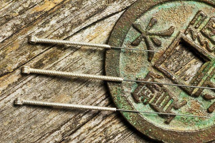Técnica trata infertilidade através da acupuntura, mas sem agulhas